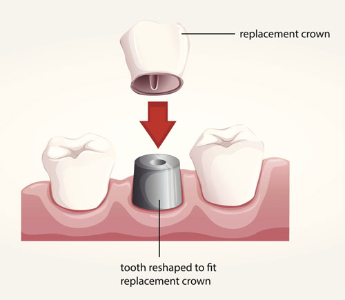 A diagram of how a dental crown works to fix spacing problems!