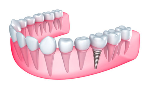 Dental Implants NorthView Family Dental WA 99208-5095