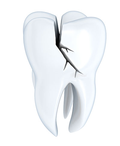 Issues That Could Arise from a Cracked Molar If Not Treated