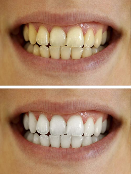 A patient happy with their smile after a teeth whitening treatment.