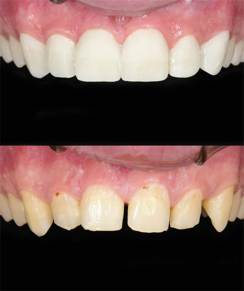 A before and after of a dental patient with dental veneers.